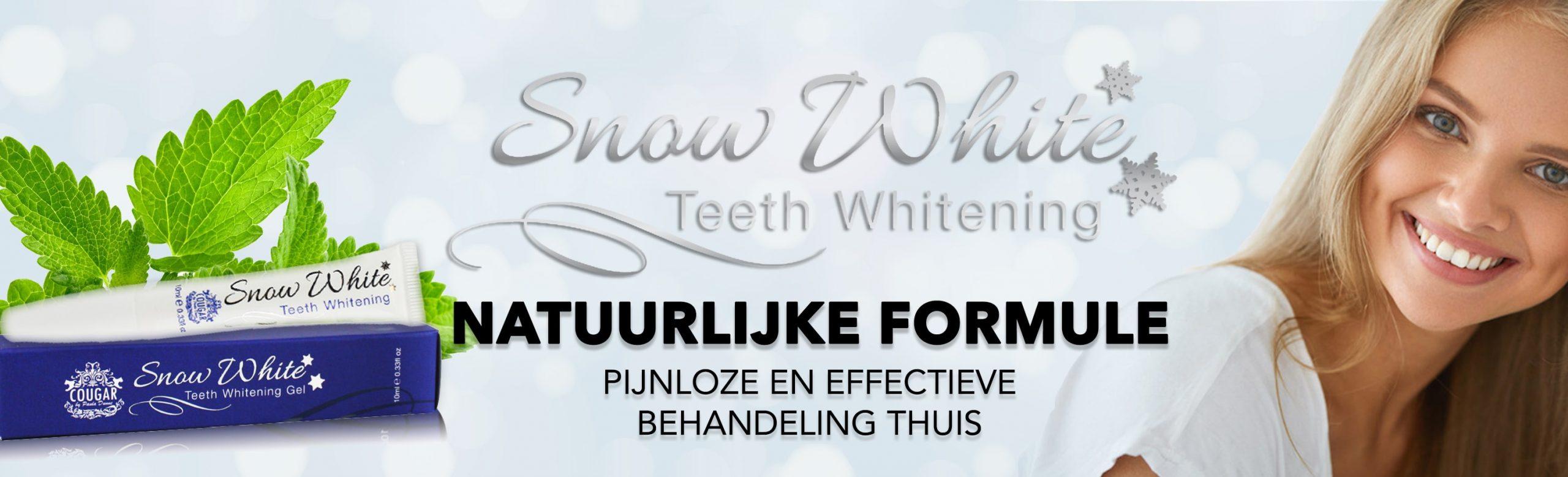 Natuurlijke tandenbleeksets die uitstekende resultaten geven.