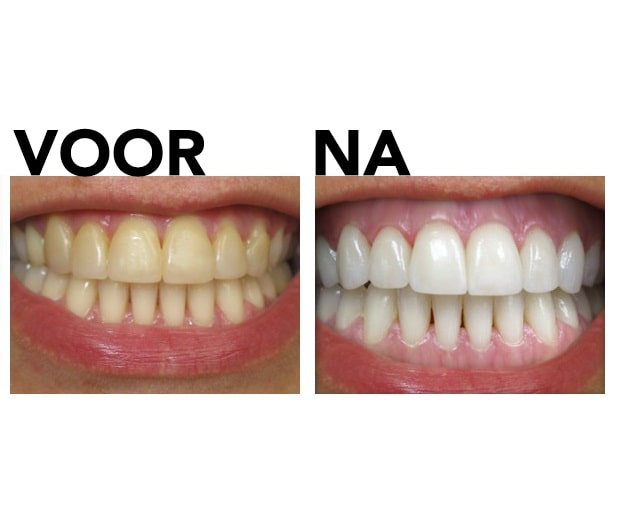 Tandenbleekset voor en na review foto