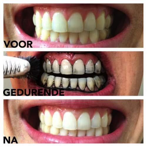 Maak je tanden voor en na wit met geactiveerde houtskool