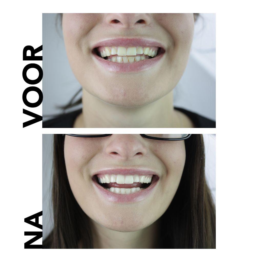 natuurlijke tanden die tandpasta voor en na bleken